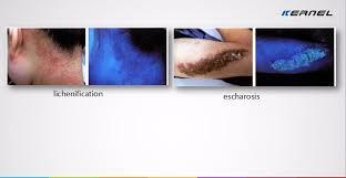 Woods Lamp Examination Images by Hand Held Wood U0027s Lamp To Diagnosis Skin Erythroderma Disease