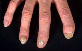 Infected Fingernail Bed by Life