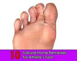 10 Natural Home Reme s for Athlete s Foot Home and Gardening Ideas