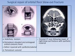 Fracture Orbital Floor Treatment by Ocular Trauma