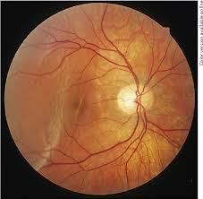 Risk Factor For Developing A Postoperative Macular Fold Retinal Detachment Running