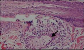 Woods Lamp Examination In Dogs by Mycobacterium Avium Subspecies Hominissuis Infection In A Dog From