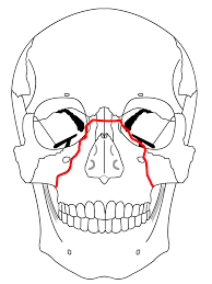 Orbital Floor Fracture With Entrapment by Evolution Of The Trauma Cycle