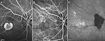 Genetic Factors For Choroidal Neovascularization Associated With