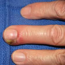 nail bed infection by dr gaurav bansal lybrate