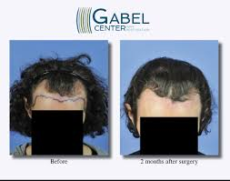 Propecia Shedding 2 Weeks by Watch A Patient U0027s Real Time Growth After 3439 Grafts Gabel Hair