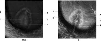 current applications of mri guided laser interstitial thermal