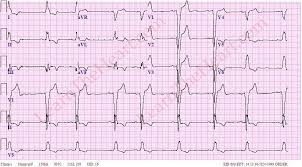 Left Bundle Branch Block ECG Example 4