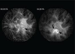 Fluorescein Angiogram FA Transiting The Left Eye Reveals Diffuse Atrophy Of Choriocapillaris Sparing