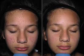 Pumpkin Enzyme Peel Before And After by Yam And Pumpkin Enzyme Peel Bamboo Leaf