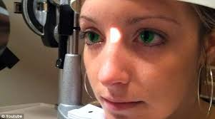 Cheap Prescription Colored Contacts Halloween by Fda Warns Do Not Buy Halloween Colored Contacts U2013 Texila Connect