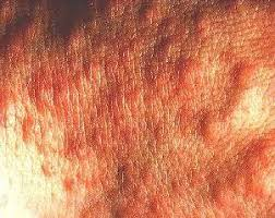 Polymorphic Light Eruption PMLE Symptoms and Treatment