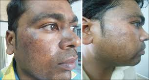 Woods Lamp Examination Melasma by Oral Tranexamic Acid With Fluocinolone Based Triple Combination