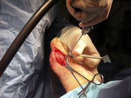 Drilling Through Ceramic Tile by Flickr Photos Tagged Anaesthetist Picssr