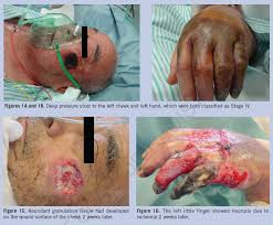 unusual cheek and upper extremity pressure ulcers resulting from