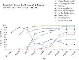 tuberous sclerosis complex sciencedirect