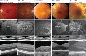 High Resolution Images Of Retinal Structure In Patients With