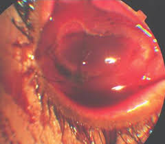 Figure 1 Collapsed Globe With Inferior Limbal Perforation Iris Prolapse And Hyphema