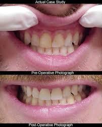 Atlanta Cosmetic Dentistry Teeth Bonding Seabreeze Dental