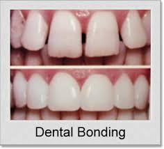 Dental Bonding in Denton TX
