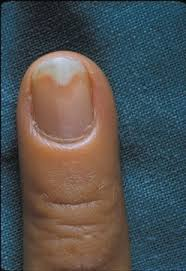Infected Fingernail Bed by When Nails Separate Health Nails Magazine
