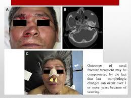 Orbital Floor Fracture Treatment by Controversies In Maxillofacial Trauma