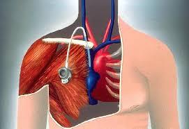 pose d une chambre implantable qu est ce qu une chambre implantable cpi ou dvi ou port a cath