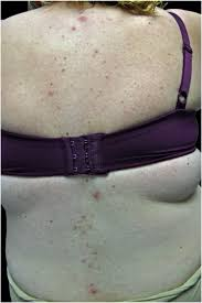 Pityriasis Rosea Christmas Tree Distribution by Inflammatory And Glandular Skin Disease In Pregnancy Clinics In