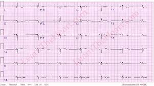 Sinus Bradycardia ECG Example 1