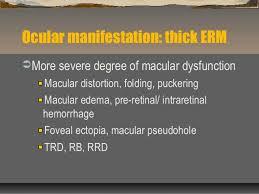 NW2010 Epiretinal Membrane