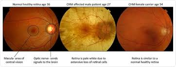 Females Are Carriers And Largely Unaffected However They Can Develop Mild Symptoms Of Visual Impairment Such As Night Blindness In More Later Stages