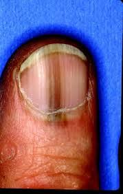 melanoma of the nail bed what s hiding under your nails