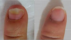 Infected Fingernail Bed by Fungal Nail Laser Treatment Fitter Feet For Life