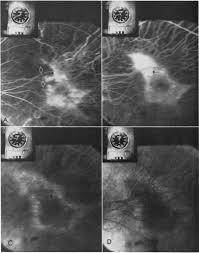 Fluorescein Angiography Of The Choriocapillaris
