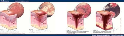 pressure ulcers and skin tears in older adults