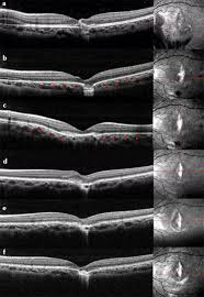 OCT Findings A At The First Medical Examination Disruption Of Retinal Pigment Epithelial Layer With Bruchs Membrane And Distortion IS OS