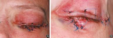 Orbital Floor Fracture Treatment by The Use Of Virtual Surgical Planning And Navigation In The