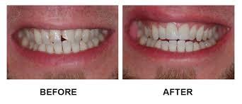 Aspire Dental Dental Bonding Aspire Dental Your Austin Dentist