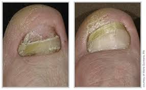 Toenail Fungus Treatments ERderm