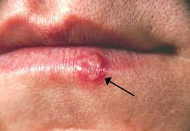 Herpes Viral Shedding Test by Herpes Simplex Wikipedia