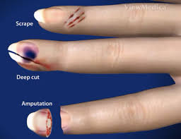 nail bed injuries doctor los angeles nail injury specialist surgeon
