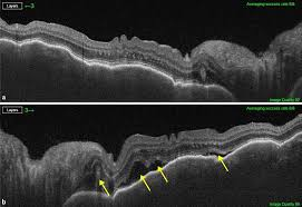 A Enhanced Depth Imaging OCT Through The Macular Detachment In