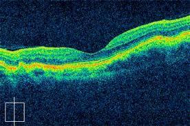 Bilateral Idiopathic Choroidal Folds