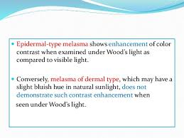 wood s light in dermatology