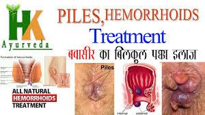 Piles Hemorrhoids treatment at home in hindi बवासीर का