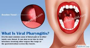 Throat Pain Due To Viral Pharyngitis Symptoms Investigations