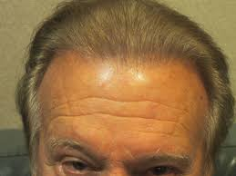 Propecia Shedding After 1 Year by Balding Blog Hair Loss Causes Archives Page 58 Of 427