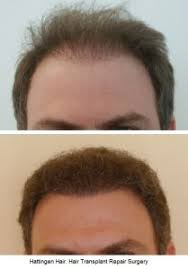 Minoxidil Shedding Phase Duration by How Long Does Minoxidil Rogaine