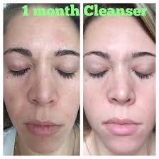 1 Month Of Itworks Cleanser I Also Used The Facial Once Every Two Weeks