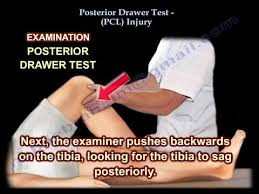 Posterior Drawer Test PCL Injury Everything You Need To Know